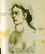 Woman with goitre, and enlargement of the thyroid gland caused by lack of iodine. From Jules Rengade 'Les Grands Maux et les Grands Remedes', Paris, c1890.