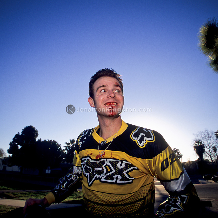 Low angle view of a young man grinning with blood on his face after injuring himself attempting a dangerous mountain bike jump in Santa Barbara, California.(releasecode: jk_mr1007) (Model Released)