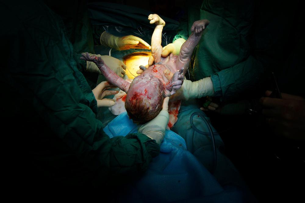 Caesarean section birth at Kettering Hospital, Northamptonshire, UK.