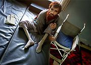 Arkansas Democrat-Gazette/BENJAMIN KRAIN 11-2-03<br /> A patient with bone disabilities waits for treatment at the International Red Cross and Red Crecent Orthodetic center in Mazar-I-Sharif.