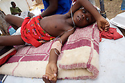 There were 664 confirmed cases of Cholera at the border town of Musina in South Africa. Officially the outbreak is under control, with the confirmed number of deaths from Cholera at 8 people. 51 of those admitted to the hospital have been under the age of 5 years old...Limpopo Health department has been working closely with IRC, Save the Children (UK), WHO and MSF to bring the outbreak under control through treatment and education programs in bordering villages and at the main IDP camp at Musina Showground..