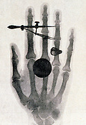 Wilhelm Roentgen's (1845-1923) X-ray photograph of his wife's hand: 1896. For his work on electromagnetic radiation and discovery of X-rays Roentgen awarded 1901 Nobel prize for Physics.