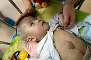 CHONGQING, CHINA - JUNE 20: (CHINA OUT) <br /> <br /> Baby boy born with his heart outside his chest lies on bed at Children\'s Hospital of Chongqing Medical University on June 20, 2016 in Chongqing, China. 110-day-old boy suffered from Pentalogy of Cantrel, a rare syndrome, with his heart outside chest, atretorrhinia in right and old fracture on right clavicle. He would receive operations at Children\'s Hospital of Chongqing Medical University. <br /> ©Exclusivepix Media