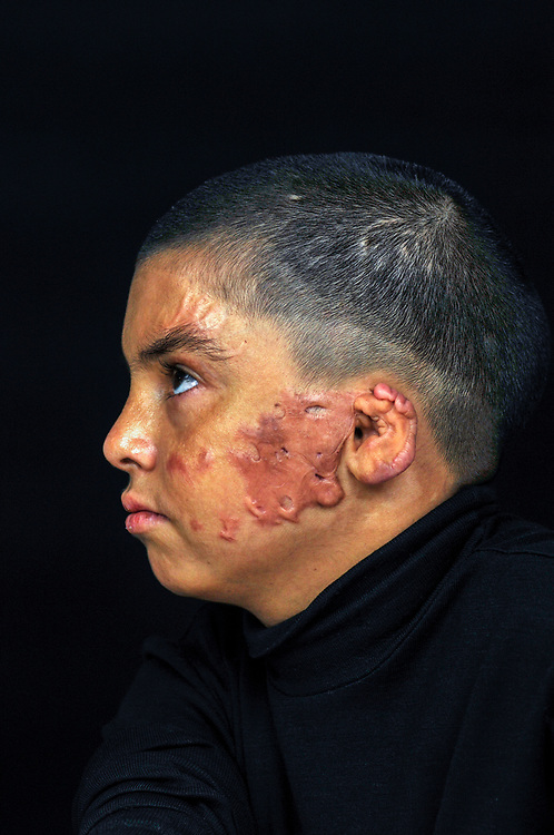 Hasin Jassim Mohamed, 12 years old, from Baghdad, was severely burned on his face and arms in 2010 while riding in a car on a family outing to visit an uncle when a car bomb exploded nearby. <br /> Amman, Jordan. 01/12/2011.