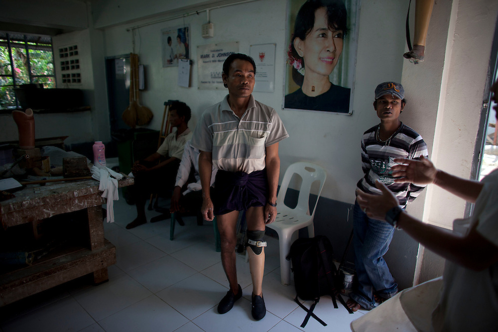 Myo Aung, who lost a leg to a landmine, tries out his new prosthetic limb at the Mae Tao clinic in Mae Sot, Thailand, Tuesday, Feb. 21, 2012.
