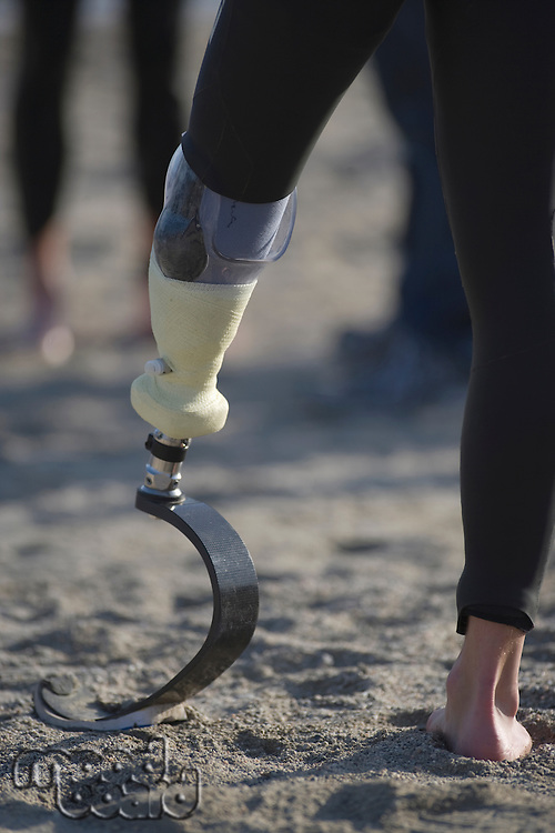 Person with prosthetic leg