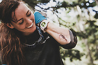 Amanda Cordell shows the wound that refuses to heal on the trails at Canyons, Park City, Utah.