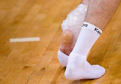 Injured leg at practice of Slovenian Handball Men National Team, on June 4, 2009, in Arena Kodeljevo, Ljubljana, Slovenia. (Photo by Vid Ponikvar / Sportida)