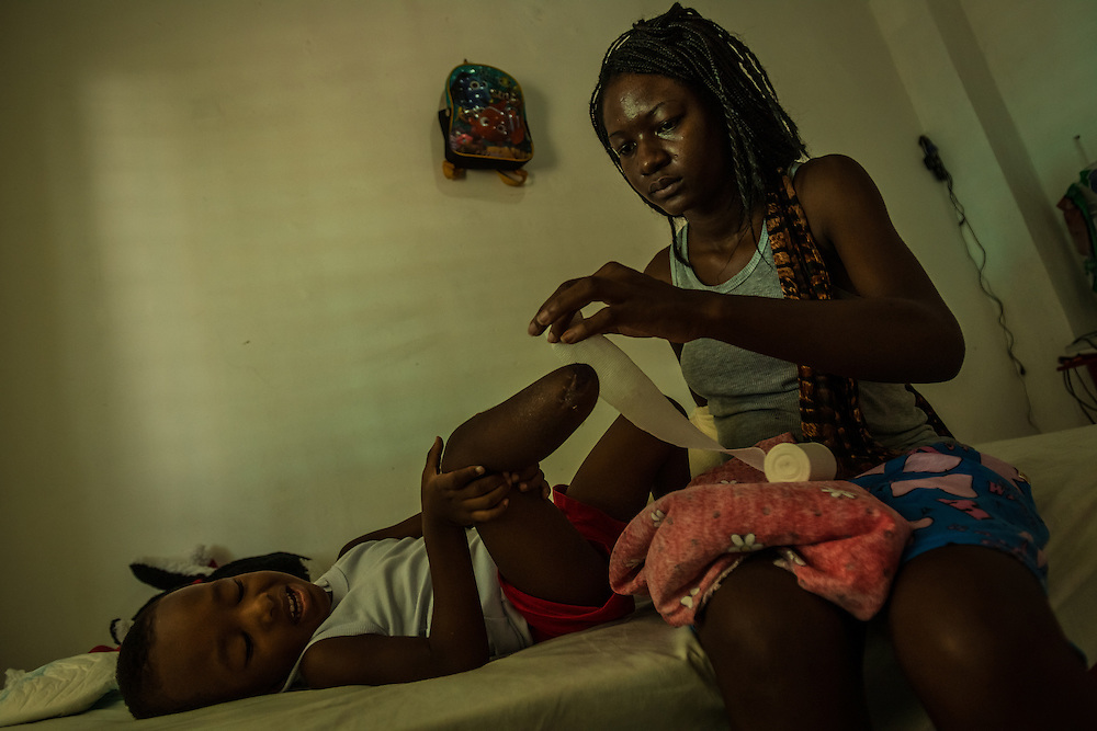 """IXTEPEC, MEXICO - JULY 7, 2014:  Emily Bermudez attempts to change the bandages on her 2-year-old son Richard's amputated leg. He was crying and wiggling around a lot so she eventually gave up and needed help. Emily and Richard fell off of the train """"The Beast"""" in May. The train ran over her arm, and Richard's leg -- leaving him partially amputated.  Emily's arm had to be re-attached, and she is going through physical therapy in effort to regain use of it again.  The Bermudez's fled because they were facing life-threatening violence in Honduras, and Emily felt like she and Richard could not survive there if they stayed.  They were trying to migrate without documents to the United States, where they have family. With both of them being injured, they have had to be creative to find ways to do their day to day tasks, like bathing. PHOTO: Meridith Kohut for The New York Times"""