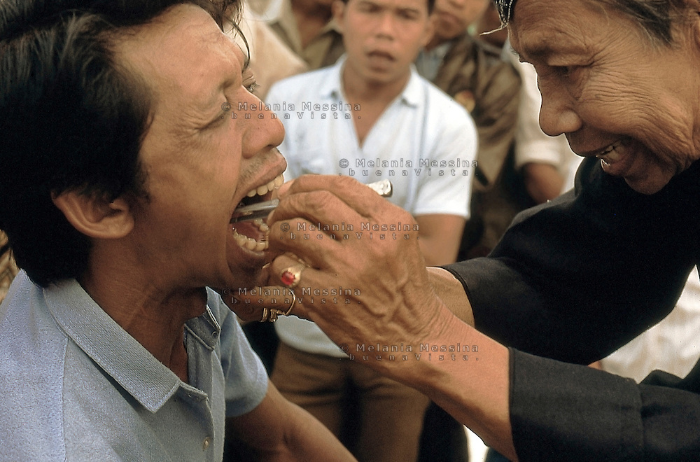 Indonesia, Java island: Pak Iwo, dukun in Yogyakarta extracts a tooth without anesthesia.Indonesia, Giava: Pak Iwo, dukun di Yogyakarta estrae un dente senza anestesia.