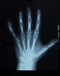 x-ray film of hand, top view