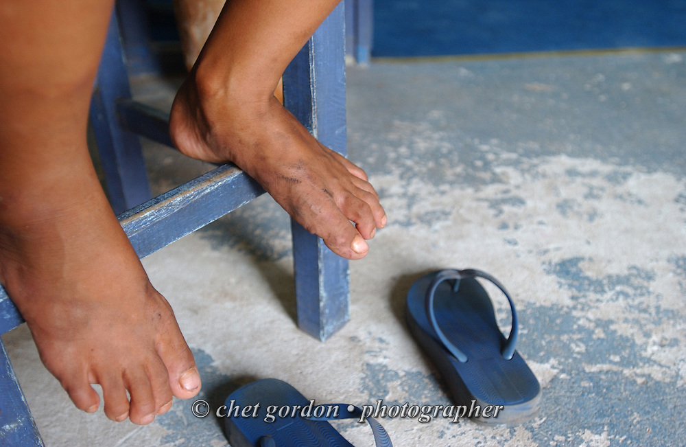 The feet of a young Paraguayan street girl in the Asociacion Cultural Justicia y Verdad (Association of Cultural Justice and Truth) in Asuncion, Paraguay on Friday evening, March 17, 2006. The shelter founded by Dr. Chantal Hulin, is run out of a renovated auto garage, where volunteers provide showers, administer health care, simple meals, and classroom activities to some of the hundreds of homeless street children that panhandle and clean windshields for money on the neighborhood streets.