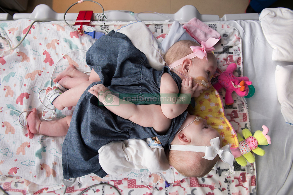 """A set of one-year-old conjoined twins who had been sharing part of their hearts have been successful separated following a mammoth seven-hour operation. Anna and Hope Richards were separated at the Texas Children's Hospital in Texas, it was announced this week, by a multidisciplinary 75-strong team of surgeons, anesthesiologists, cardiologists and nurses. The girls were delivered via C-section on 29 December, 2016, at 35 weeks gestation, weighing a combined 9lbs 12oz (4.4kg) and were conjoined at their chest and abdomen, through the length of their torso and shared the chest wall, pericardial sac (lining of the heart), diaphragm and liver. In addition they had large blood vessels connecting their hearts. The twins are now recovering at the hospital and are expected to be strong enough to go home in about a month's time. """"We've thought about and prayed for this day for almost two years,"""" their mother Jill Richards said, who welcomed the girls along with her husband Michael and their sons Collin and Seth. """"It's an indescribable feeling to look at our girls in two separate beds."""" The epic surgery was carried out on January 13 and involved planning and preparation before the girls were even born. In November last year, aged 11 months, the twins underwent a surgical procedure to place tissue expanders to allow their skin to grow and stretch ready for their separation. Dr. Larry Hollier, surgeon-in-chief and chief of plastic surgery at Texas Children's Hospital, said: """"The success of this incredibly complex surgery was the result of our dedicated team members' hard work throughout the last year. """"Through simulations and countless planning meetings, we were able to prepare for situations that could arise during the separation. """"We are thrilled with the outcome and look forward to continuing to care for Anna and Hope as they recover."""" The Richards family, from North Texas, learned Jill was carrying conjoined twins during a routine ultrasound. The fam"""