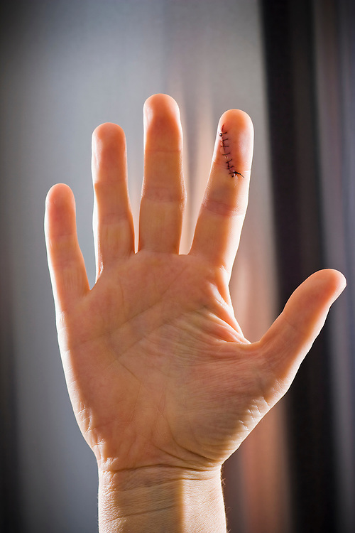 A womans hands witha stitched up cut on the index finger.