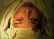 An eyelid surgery patient rests after undergoin a procedure in Beijing, China Oct. 26, 2005. An Estimated one million Chinese people per year flocking to plastic surgery as a way to boost their confidence as expendable incomes grow. .Fueling the trend is a desire to compete in a rapidly changing society where image and first impressions count and social stigmas on buying perfection are few. A few decades ago, a Chinese woman could have been denounced and maybe even beaten for wearing lipstick, much less undergoing surgery to improve their looks. In the 1960s and 1970s, the closest thing to a Chinese beauty ideal was Liu Hulan, a robust 15-year-old country girl with a practical bob and not a trace of makeup who was decapitated by the Nationalists when she refused to name her fellow Communists in 1947.