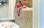 Exhausted, hot and hurting, Ella Murray sighs as she hangs over the side of the bathtub May 11, 2017 in Alexandria, VA. Ella has a rare genetic disease called Epidermolysis Bullosa which causes her fragile skin to blister and scar. Three times a week she must soak off the old bandages and have her mother dress the wounds all over her body  a process that can take three to five hours. (photo by Katherine Frey/The Washington Post)