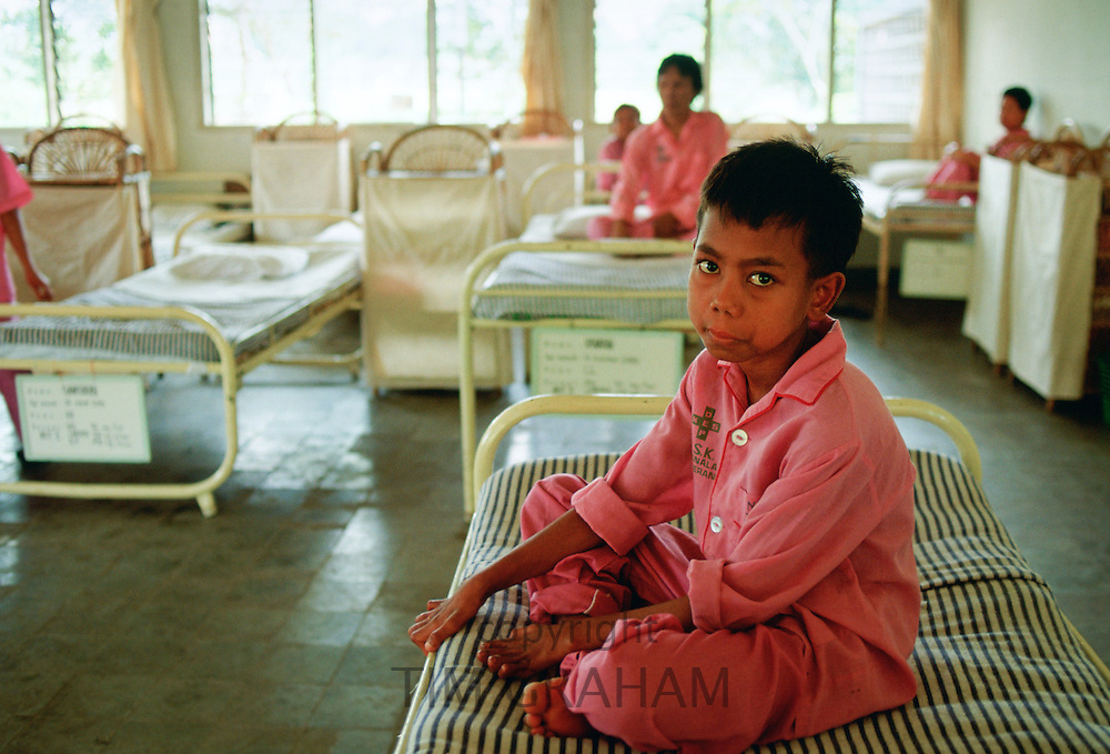 A boy suffering from leprosy is cared for as a patient in the Sitanala Hospital in Jakarta, Indonesia