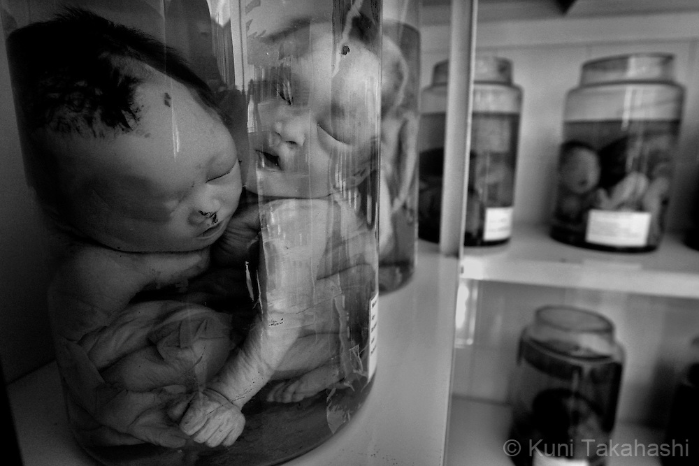 Specimens of deformed babies are preserved at Tu Du Hospital in Ho Chi Minh City, Vietnam on July 8, 2009..Many children in the hospital, who are from areas that were heavily sprayed by Agent Orange during the war, suffer mental and physical problems due to exposure to the toxic herbicide...