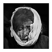 Faces of Mosul<br /> <br /> A collection of images from 4 time Pulitzer prize winning photographer Carol Guzy, gives us a glimpse into the faces of those affected by the fierce conflict with ISIS in Mosul. Wounded and weak, most who survived now face an uncertain future in the limbo of IDP camps. Shattered lives, lost loved ones and escape from the rubble of collapsed homes and the evil of ISIS doctrine, leaves scars of emotional trauma even more difficult to heal. The war in Mosul is over, but the humanitarian crisis continues.<br /> <br /> Mosul, Iraq - Civilians, many wounded and weak, arrive at a medical Trauma Stabilization Point near the Old City as they flee the fierce battle with ISIS in West Mosul amid ruins of the city.  <br />  &copy;Carol Guzy/zReportage.com/Exclusivepix Media