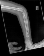 X-ray of a Human forearm with fat pad signs and a Supracondylar humerus fracture on the left arm of a 3 year old male infant