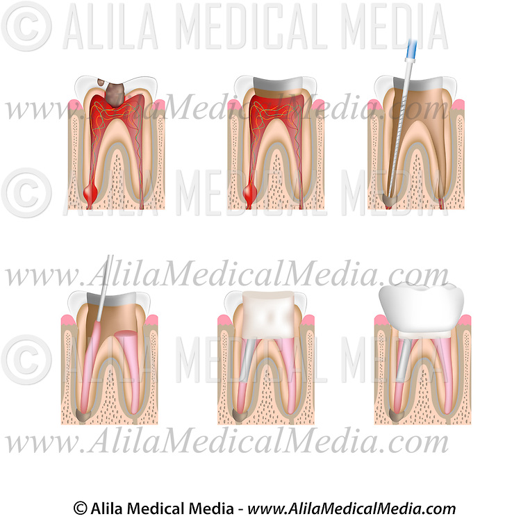 Root canal treatment | Alila Medical Images