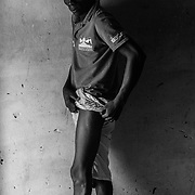 A young man shows the scar caused by a shot of a Libyan criminal without reason. After several months in the hospital he was repatriated to Guinea Bissau.<br /> <br /> Un joven muestra la cicatriz causada por un disparo de un criminal libio sin raz&oacute;n. Despu&eacute;s de pasar varios meses en el hospital fue repatriado a Guinea Bissau.