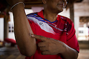 Mr Bunsri Mamak, 50, shows the small wound where doctors say the bacteria entered his body. He is recovering at his house after spending 13 days in ICU in Ubon's Provincial Hospital after contracting Melioidosis from his fields. He is diabetic and after the symptoms of Melioidosis were wrongly diagnosed at 3 different health clinics and local hospitals he was finally rushed to Sapphasit Prasong hospital that has a Melioidosis clinic and specialised laboratory.<br /> <br /> Melioidosis, though hardly heard of, is Thailand's third largest killer after AIDS and TB. Experts estimate that Melioidosis, caused by a shape-shifting bacteria that lives in water and soil, has 165,000 new cases world-wide a year and that more than half result in death. That means Melioidosis kills roughly the same number as measles or dengue across the globe. <br /> <br /> The bacteria is highly endemic in Northeast Thailand where around 2000 cases are reported per year and mostly from rice farmers who have regular contact with the soil. If not treated and the patients have other complications such a diabetes the mortality rate can be as high as 90% within 5 days.<br /> <br /> If a patient is treated, every case involves a minimum of 2 weeks in hospital followed by 20 weeks of antibiotic treatment and annual followups for the rest of their lives.<br /> <br /> Melioidosis, placed in the same microorganism grouping as anthrax by the US government, is a deadly neglected tropical disease that very few have even heard of.