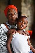 047, Keale Boga Sebego, 4 years old, Male, UCL, before,  with his Aunt Linkie. They traveled from Limpopo for 14 hours to reach the mission.<br /> Rob Ferreira Hospital. Operation Smile South Africa&rsquo;s 2015 mission to Mbombela. South Africa.<br /> <br /> (Operation Smile Photo - Zute Lightfoot)