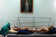 A young boy with severe burns over his entire body lies under a painting of a cool waterfall at the Choader hospital. The boy suffered the burns during the battle for Baghdad when a weapons cache exploded near his home. Forty people were killed. The boy was the only survivor.  ..Baghdad, Iraq. 05/05/2003...Photo © J.B. Russell