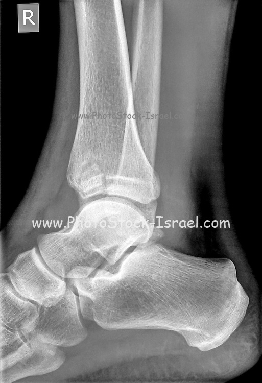 X-ray of an ankle 50 year old male with a fractured tibia. Side View