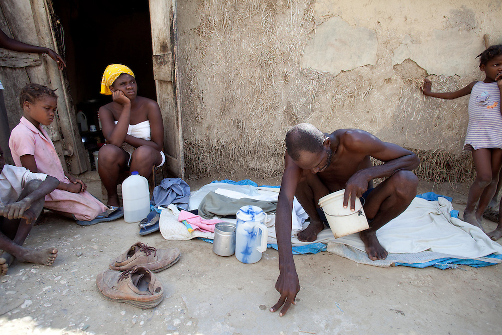 """Gracia Philemon, age 40, center, lies sick with cholera in front of his house. Philemon started exhibiting symptoms early morning and at 1 PM he can't walk. When asked why he hasn't gone to the hospital he says """"I don't have money to pay a motorcycle taxi to take me to the hospital"""". The hospital where cholera patients are being treated is about three kilometers away from where Philemon sits in front of his house."""