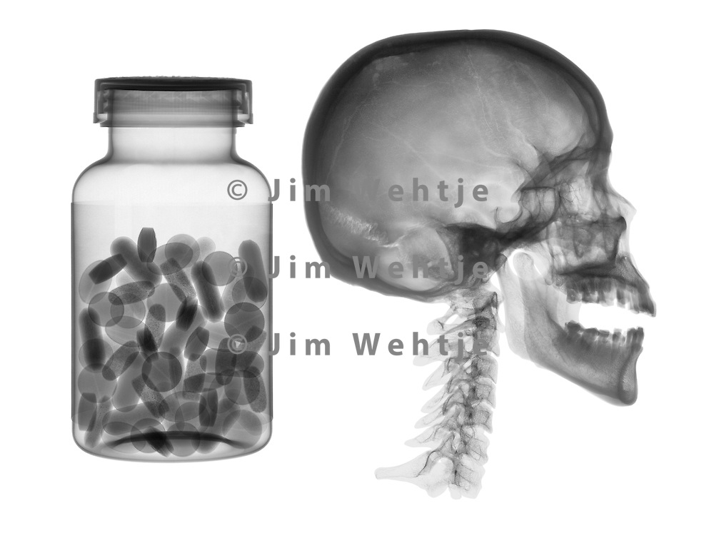 X-ray image of a skull with pills (black on white) by Jim Wehtje, specialist in x-ray art and design images.