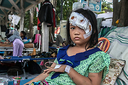 October 4, 2018 - Palu, Central Sulawesi, Indonesia - Marsya Dewi Indah, 9, who survived the devastation of the Tsunami, after the earthquake hit the area on September 28, at a hospital in Balaroa Village, Central Sulawesi, Indonesia. A total of 1,411 people have been confirmed dead and over 2,500 injured after the monster earthquake struck on September 28 sending destructive waves barrelling into Sulawesi island. (Credit Image: © Ivan Damanik/ZUMA Wire)