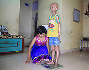 "Bhiwandi – INDIA. EXCLUSIVE<br /> The 3 Wishes : A Father's Race against Time <br /> <br /> Nihal Bitla is a 14 years old boy, with bright eyes & child like innocence,  but has the body of an elderly man, with wrinkled leathery skin, a bald enlarged head, and withered limbs.<br /> <br /> Nihal, who lives on the outskirts of Mumbai, India, suffers from a rare genetic disorder called Hutchinson-Gilford  Progeria Syndrome, which causes him to age eight times faster than normal.<br /> <br /> <br /> ""I ignore it now if people stare at me because of the way I look,"" says Nihal, who stopped going to school five years ago because he was being teased about his condition by his classmates.<br /> <br /> <br /> Nihal doesn't like the 2009 Bollywood movie 'Paa' so much. While he was always the odd boy out because of the way he looked, school life became all the more difficult for him after 'Paa' released. The movie had Bollywood superstar Amitabh Bachchan play a progeria patient, named Auro. Nihal's fellow students began teasing & calling him Auro. Tired of his friends' barbs, he  stopped going to school . The last straw was when a fellow student told him he too would suffer a heart attack like Auro did in the movie. Repeated attempts by teachers, who felt he was a bright student, to get him back to class failed. Some of his friends tried too, but Nihal didn't budge. Now he stays home on most days, rarely ever stepping out of the house and spends all his time either painting or surfing the net.<br /> <br /> <br /> <br /> His father, Srinivas, who owns a small mobile phone repair shop, says that Nihal was the first person in India to be discovered with Hutchinson-Gilford progeria syndrome, the most severe form of progeria.<br /> <br /> Most children with the disorder only live until the age of 14, with heart attacks and strokes being the common causes of death.<br /> <br /> <br /> Progeria is believed to have inspired the story by F. Scott Fitzgerald, The Curious Case of Benjamin Button, which was the basis for a film starring Brad Pitt, about a character born as an elderly"