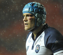 Bristol Rugby's Olly Robinson picks up an injury to his eye - Photo mandatory by-line: Dougie Allward/JMP - Mobile: 07966 386802 - 07/11/2014 - SPORT - Basketball - Bristol - Ashton Gate - Bristol Rugby v Doncaster Knights - Greene King IPA Championship