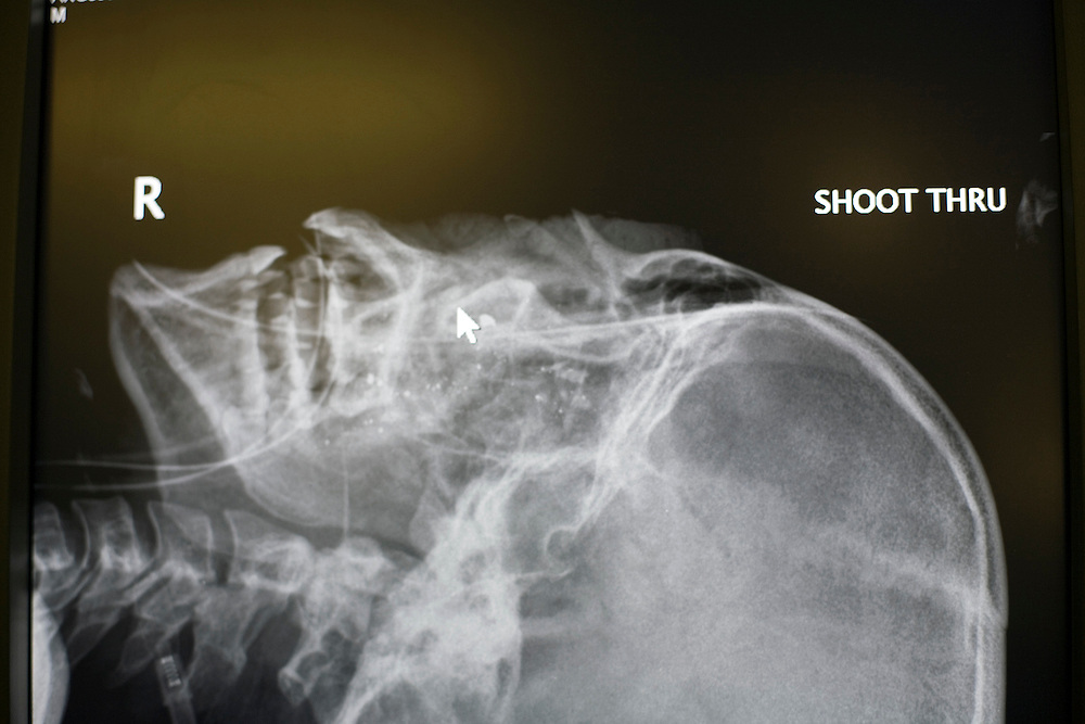 A head x-ray of an Afghan National Army soldier shot through the head during battlefield engagement with Taliban in southern Afghanistan, remains on an operating room computer monitor.