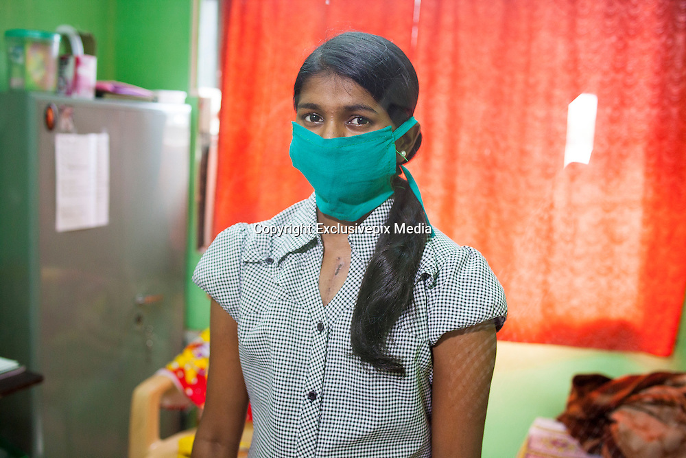 """EXCLUSIVE <br /> 27 Jan 2016 - Mumbai - INDIA.<br /> <br /> Special delivery :  Young girl's new heart survives 550km journey through India's airports and traffic<br /> <br /> Paediatric cardiologist Vijay Agarwal was driving back to his home in Mumbai in the evening of January 2, preparing to host a small New Year's party, when he received a phone call. A 20-year-old woman had just died in Indore — nearly 550 kilometres from Mumbai — and her heart was available for transplant. Didn't he have a patient awaiting just such a heart?<br /> <br /> Dr Agarwal, who works at the Fortis hospital in the Mumbai suburb of Mulund, thought immediately of Sweden D'Souza — his 16-year-old patient who suffered from a chronic heart muscle disease called cardiomyopathy.<br /> <br /> Sweden certainly qualified for a transplant. It was the distance the heart had to travel that worried Dr Agarwal.<br /> <br /> What followed was hours of frenzied coordination as determined doctors, and traffic and police officers worked through the night to ensure the success of Mumbai's first paediatric heart transplant. It also marked the furthest distance that a heart has travelled within India to be transplanted.<br /> <br /> A heart must be transplanted within four hours after it is taken out of the body, or its muscle will begin to atrophy. That window of time is already narrow, but the stakes are even higher given the logistics of transportation on India's clogged roads and possible complications in surgery. Adding to the complexity was the fact that no central authority in India co-ordinates such transplants.<br /> <br /> """"I sent a retrieval team of four people to Indore that same night, within an hour of us receiving the call,"""" he said. """"A private jet would have saved a lot of time, but they were charging 800,000 rupees.""""<br /> <br /> Sweden's father, a security guard at the office of an oil corporation, could not afford that fee. """"So we booked a flight the next morning at 7.40am,"""" Dr Agarwal sai"""