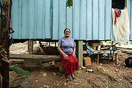 "Mercedes Micaela Jimenez Romero lived and raised her children in a ""finca"" next to the ""Pozo lake 20"", without realizing that live on deposits of oil buried waste. Like all his family used the water of the rivers surrounding, used to cook a strange salt that employees of Texaco threw away. Now you have frequent headaches, her children all have skin problems, her daughter has a suspicion of skin cancer."