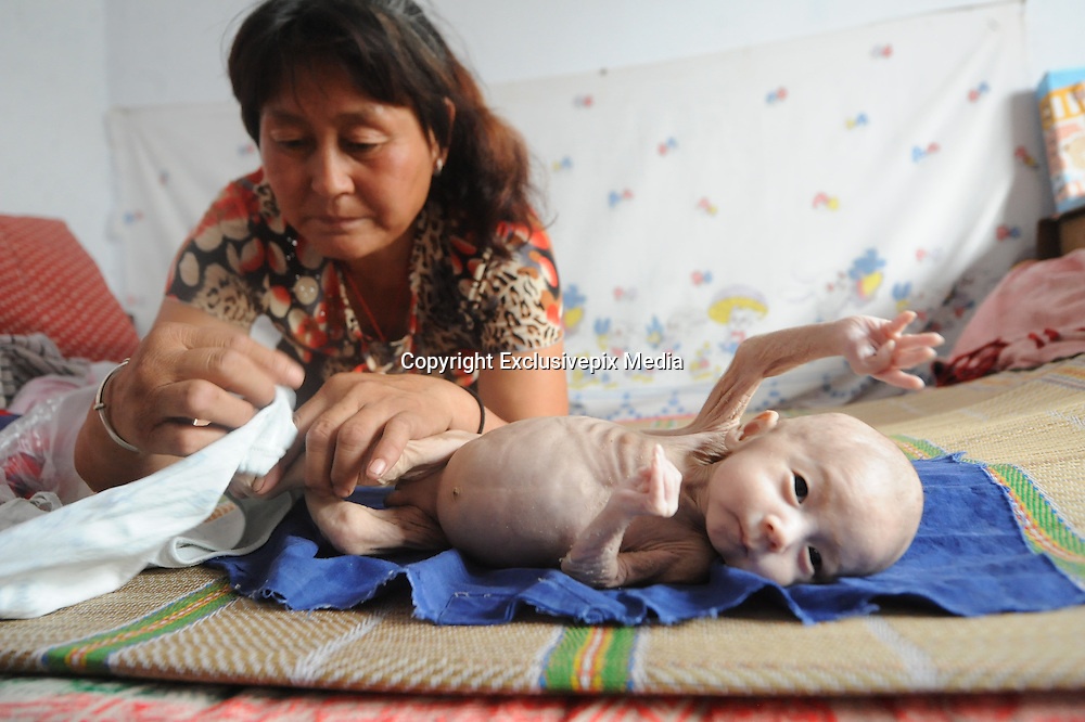 CHANGZHI, CHINA - JULY 27: (CHINA OUT)<br /> <br /> 80-day-old Baby With No Anus, little baby Guo Enze is seen having a bath, Guo who has no anus at Chuandi Village in Huguan Town, Changzhi City, Shanxi Province of China. <br /> 80-day-old Guo Enze born without anus ate a little milk everyday and defecated toughly from penis. A charity project found Guo and donated milk powder to him. <br /> &copy;Exclusivepix Media