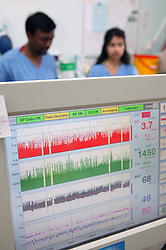 Cardiac Monitoring Machine on the Adult Intensive Care Unit,