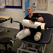 Pte Stephen Bainbridge of the Black Watch (3SCOTS) who lost both legs in an IED explosion on the 11th of November 2011 in Loya Manda, Helmand Province, Afghanistan is now recovering well. Headley Court RAF Hospital, England on the 20th of March 2012.