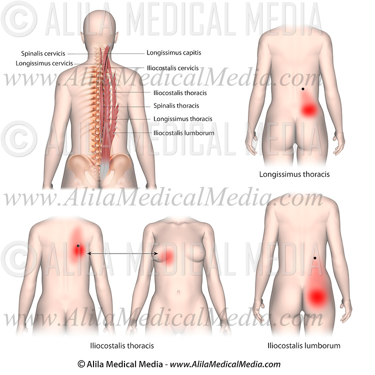 Trigger Points And Referred Pain Patterns For The Erector Spinae