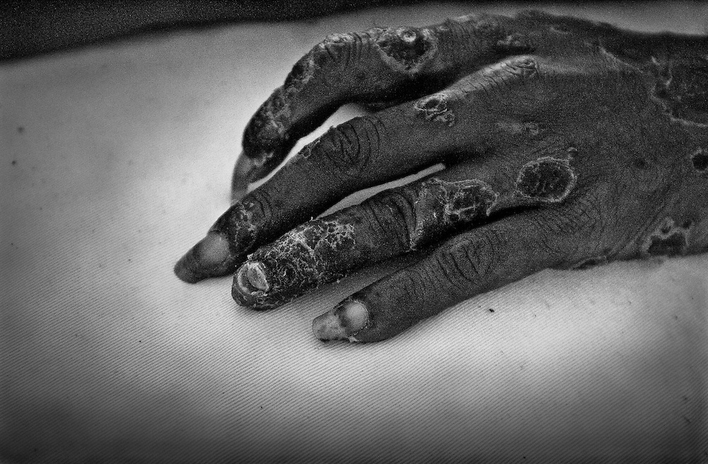 The hand of a man with AIDS at a hospice in Jayapura. His whole body was covered with boils.