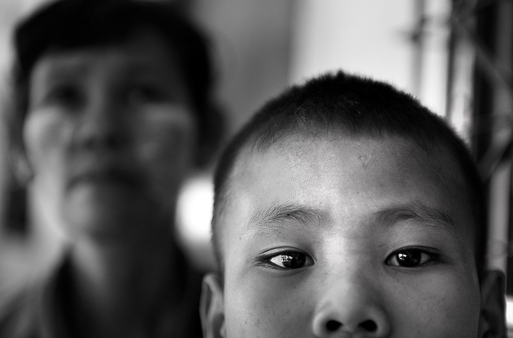 Thant Zin Win, 12 years old with rheumatic heart disease. The most urgent case as without treatment he will not live..The Mae Tao Clinic (MTC), founded and directed by Dr. Cynthia Maung, provides free health care for refugees, migrant workers, and other individuals who cross the border from Burma to Thailand in search of of medical treatment.