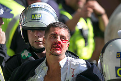 © Licensed to London News Pictures. 13/06/2020. London. A protester is injured during clashes between BLM protesters and far-right groups in Trafalgar Square in central London. British police have imposed strict restrictions on groups planning to protest in London Saturday in a bid to avoid violent clashes between protesters from the Black Lives Matter movement, as well as far-right groups. Photo credit: Marcin Nowak/LNP