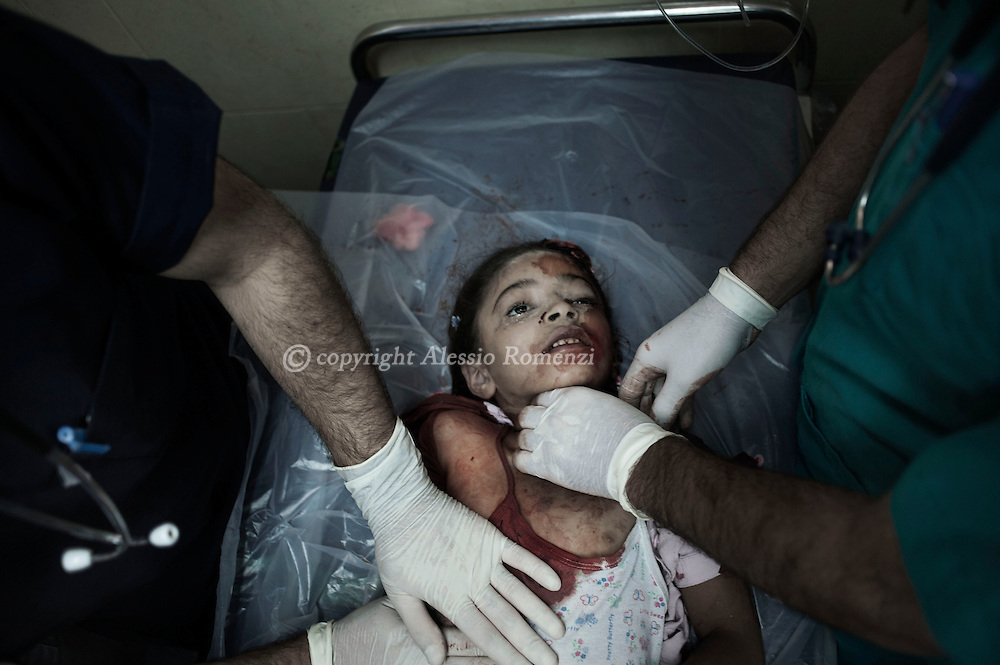 Gaza Strip, Gaza City: A young Palestinian girl victim of Israeli Army shelling is examined and pronounced dead at Al Shifa hospital in Gaza City. ALESSIO ROMENZI