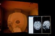 RESONADOR MAGNETICO DE LA UNIDAD DE RESONANCIA MAGNETICA DEL SERVICIO DE RADIOLOGIA DEL CENTRO MEDICO UC SAN JOAQUIN DE LA PONTIFICIA UNIVERSIDAD CATOLICA DE CHILE. SANTIAGO DE CHILE 14-05-2012 Alvaro de la Fuente/TRIPLE.cl.