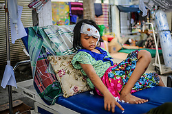 October 4, 2018 - Palu, Central Sulawesi, Indonesia - Marsya Dewi Indah (age 9) is reviving treatment at Anutapura Hospital after the earthquake. After the earthquake and tsunami, Marsya Dewi Indah lost her mother and sister..A deadly earthquake measuring 7.7 magnitude and the tsunami wave caused by it has destroyed the city of Palu and much of the area in Central Sulawesi. According to the officials, death toll from devastating quake and tsunami rises to 1,347, around 800 people in hospitals are seriously injured and some 62,000 people have been displaced in 24 camps around the region. (Credit Image: © Hariandi Hafid/SOPA Images via ZUMA Wire)