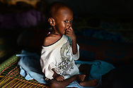 """Edmond Marco, 1 year old and severely malnourished, sits in his mother's shelter at a camp for displaced people on the grounds of St. Mary Help of Christian Cathedral in the town of Wau, South Sudan. He is not eating well, says his mother Justina, 27, and doesn't talk much, though he has his own words for certain things like water, which he calls """"baba."""" His mother prays to God he will recover some days, and other days curses God for being trapped in a country now ravaged by civil war and brutal killing that has forced nearly 2 million people to flee their homes, and the same number on the brink of starvation, according to U.N. figures."""
