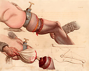 Amputation of the leg at the thigh.  The tourniquet deadened the pain as well as reducing the flow of blood but was likely to cause serious tissue damage.   From 'Illustrations of the Great Operations of Surgery' by Charles Bell (London, 1821).  Hand-coloured engraving.